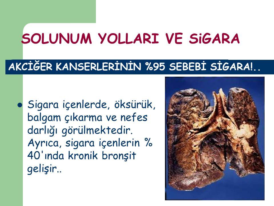 AKCİĞER KANSERLERİNİN %95 SEBEBİ SİGARA!.. Sigara içenlerde, öksürük, balgam çıkarma ve nefes darlığı görülmektedir. Ayrıca, sigara içenlerin % 40'ınd
