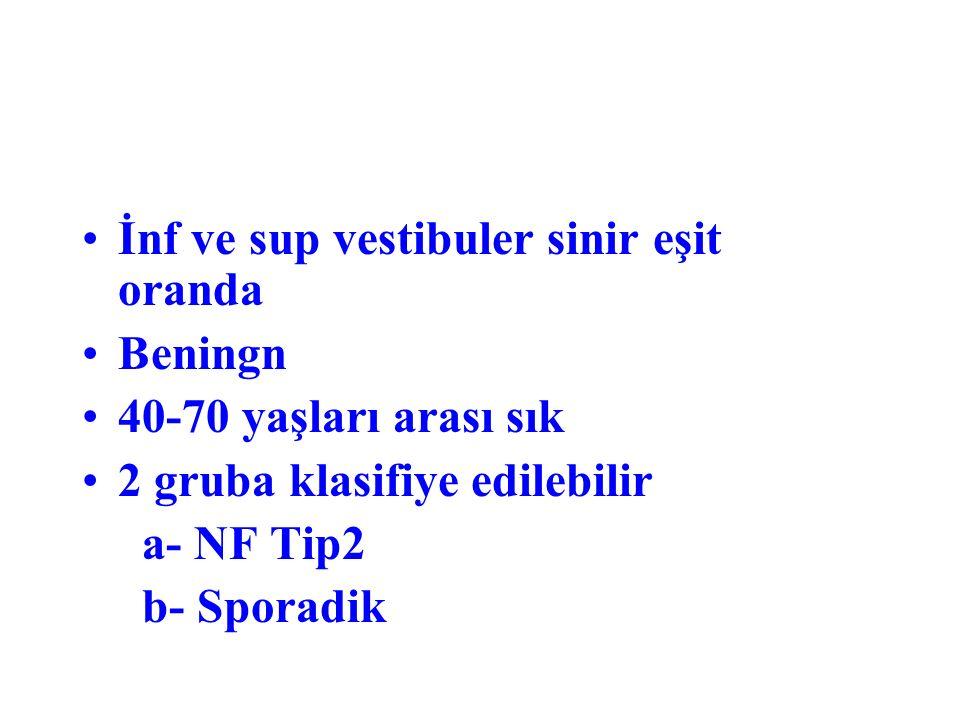 İnf ve sup vestibuler sinir eşit oranda Beningn 40-70 yaşları arası sık 2 gruba klasifiye edilebilir a- NF Tip2 b- Sporadik