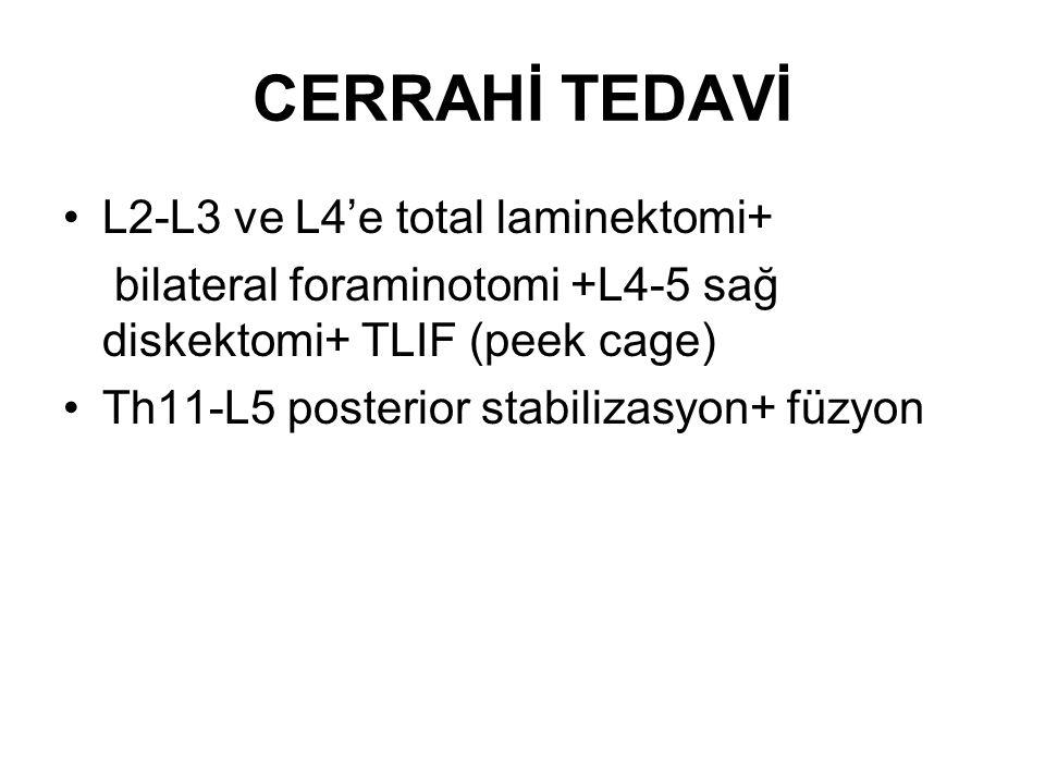 CERRAHİ TEDAVİ L2-L3 ve L4'e total laminektomi+ bilateral foraminotomi +L4-5 sağ diskektomi+ TLIF (peek cage) Th11-L5 posterior stabilizasyon+ füzyon