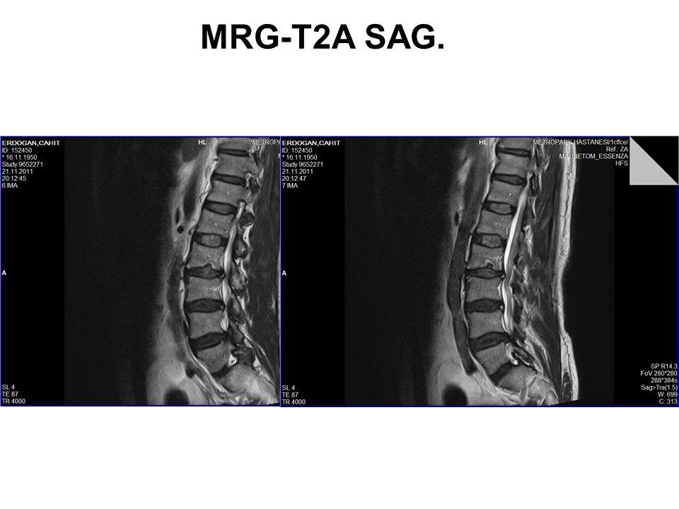 MRG-T2A SAG