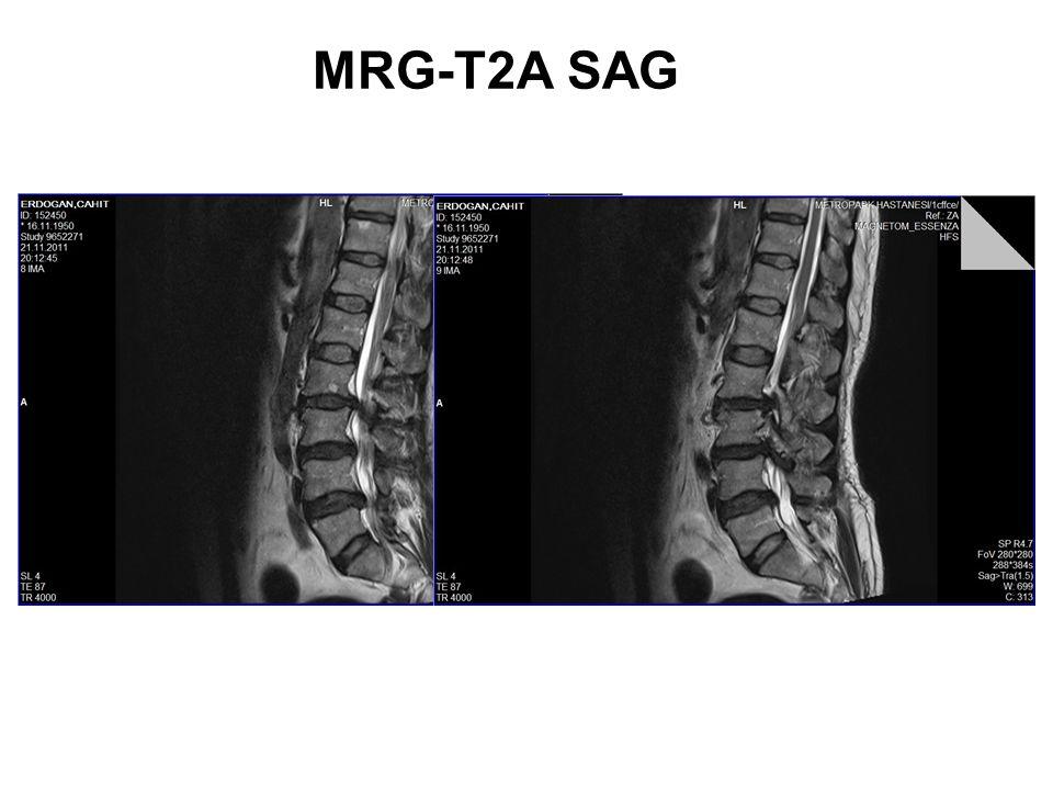 MRG-T1A SAG.