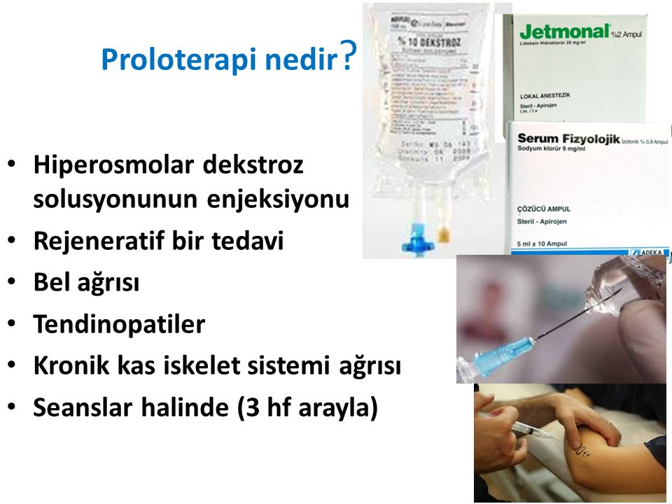 METOD Ağrı şiddeti (Numerik Derecelendirme Skalası (NRS): 0-10) SF-36 anketi dizde osteoartrit : 5 ayak bileğinde bağ zedelenmesi :2 dirsekte epikondilit : 2 omuzda supraspinatus tendinozisi : 8 olgu Lokal anestezik kullanılarak proloterapi : DİYAGNOSTİK Hipertonik dekstroz solüsyonuyla PROLOTERAPİ uygulandı.