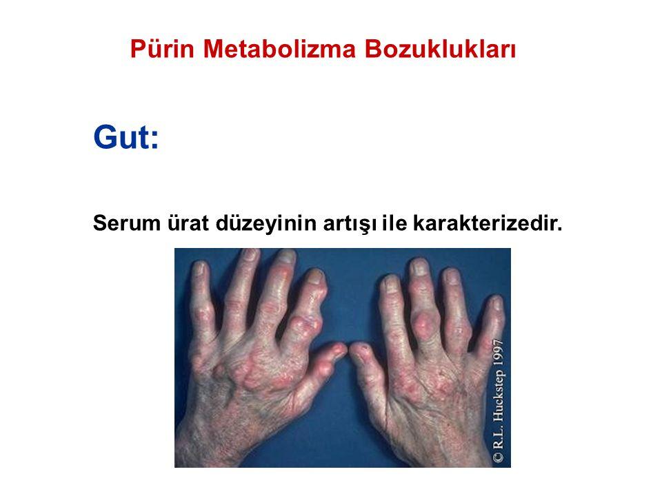 Pürin Metabolizma Bozuklukları Gut: Serum ürat düzeyinin artışı ile karakterizedir.