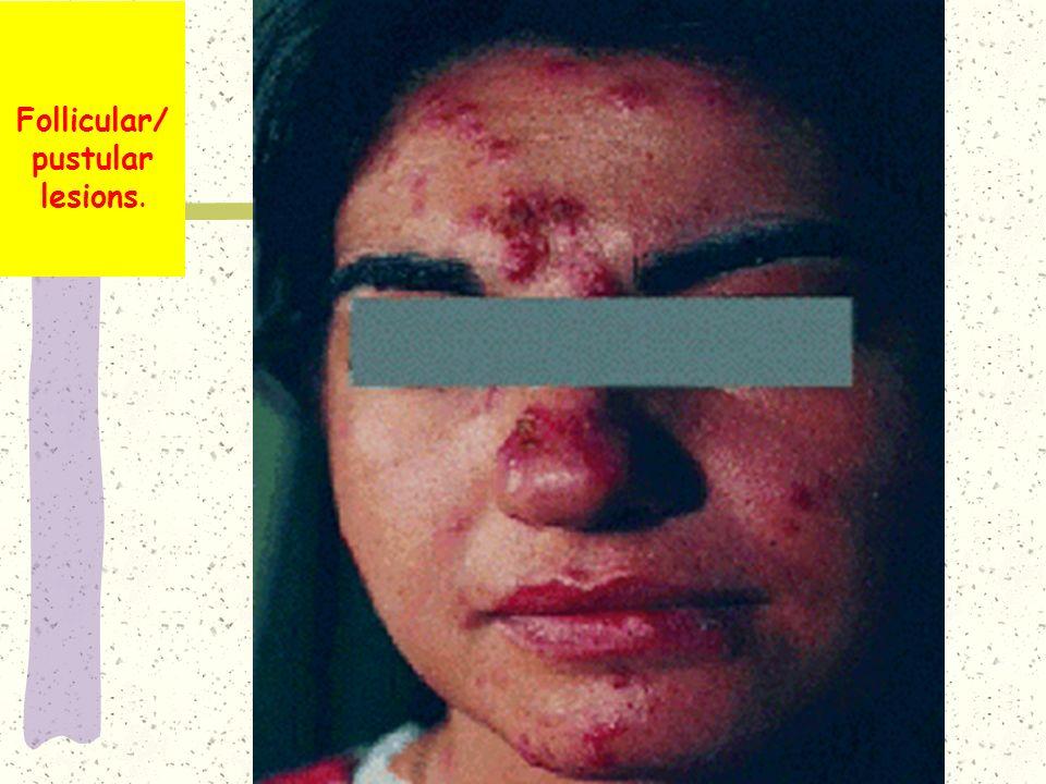 Follicular/ pustular lesions.