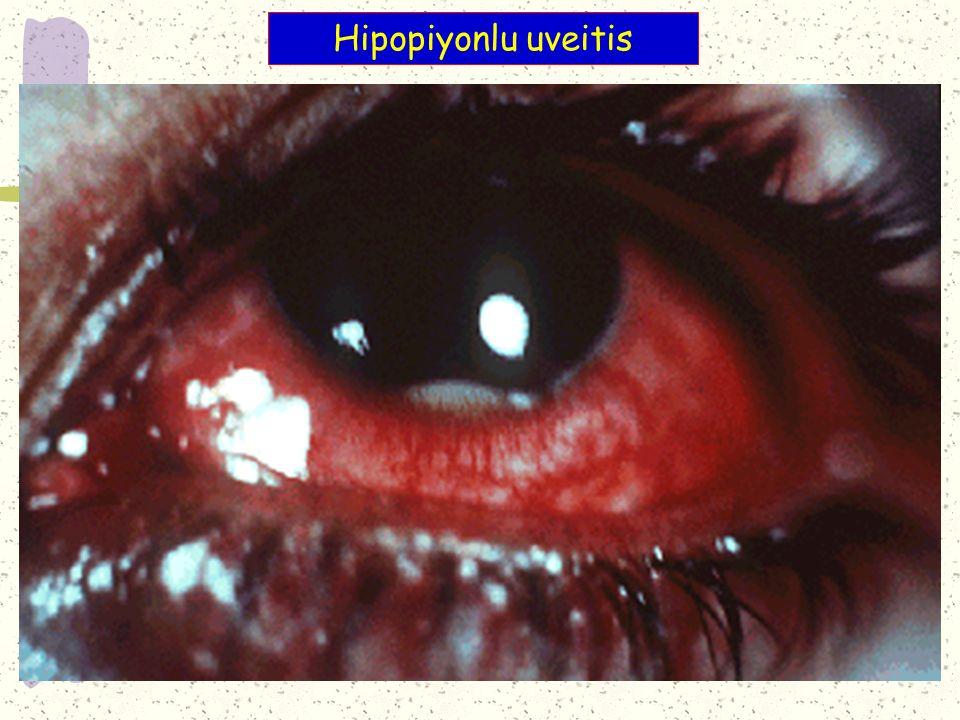 Hipopiyonlu uveitis