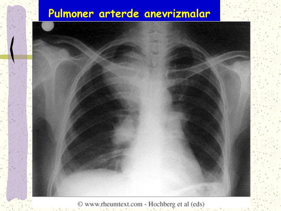 Pulmoner arterde anevrizmalar