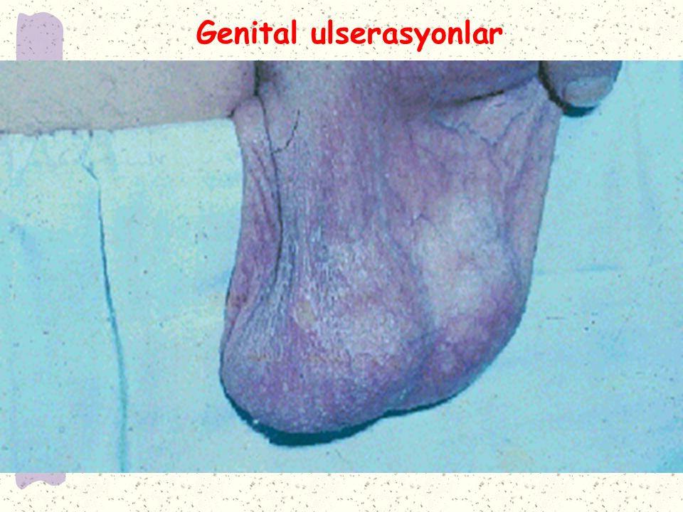 Genital ulserasyonlar