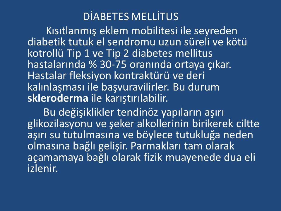 DİABETES MELLİTUS Kısıtlanmış eklem mobilitesi ile seyreden diabetik tutuk el sendromu uzun süreli ve kötü kotrollü Tip 1 ve Tip 2 diabetes mellitus hastalarında % 30-75 oranında ortaya çıkar.