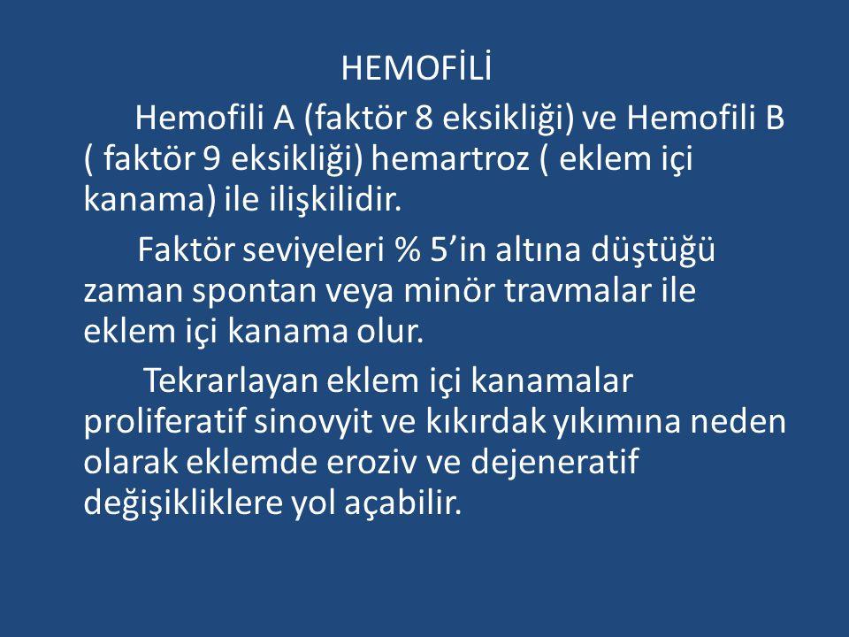 HEMOFİLİ Hemofili A (faktör 8 eksikliği) ve Hemofili B ( faktör 9 eksikliği) hemartroz ( eklem içi kanama) ile ilişkilidir.