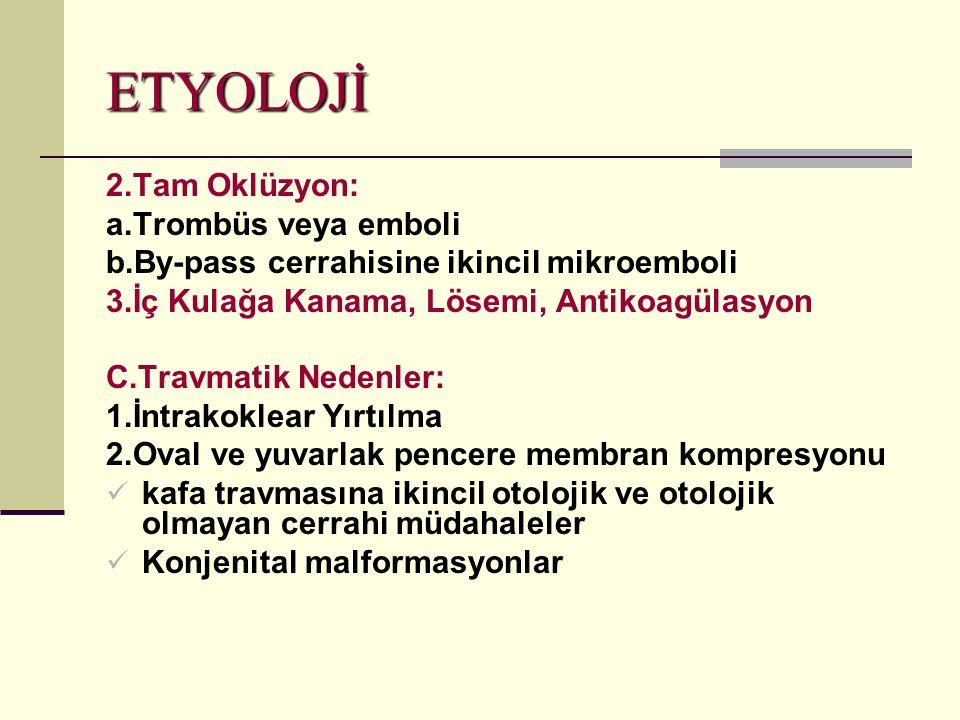 ETYOLOJİ 2.Tam Oklüzyon: a.Trombüs veya emboli b.By-pass cerrahisine ikincil mikroemboli 3.İç Kulağa Kanama, Lösemi, Antikoagülasyon C.Travmatik Nedenler: 1.İntrakoklear Yırtılma 2.Oval ve yuvarlak pencere membran kompresyonu kafa travmasına ikincil otolojik ve otolojik olmayan cerrahi müdahaleler Konjenital malformasyonlar