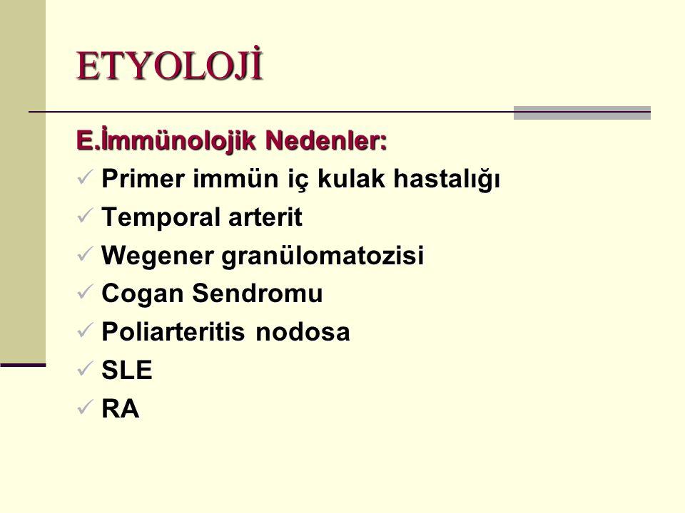 ETYOLOJİ E.İmmünolojik Nedenler: Primer immün iç kulak hastalığı Primer immün iç kulak hastalığı Temporal arterit Temporal arterit Wegener granülomatozisi Wegener granülomatozisi Cogan Sendromu Cogan Sendromu Poliarteritis nodosa Poliarteritis nodosa SLE SLE RA RA