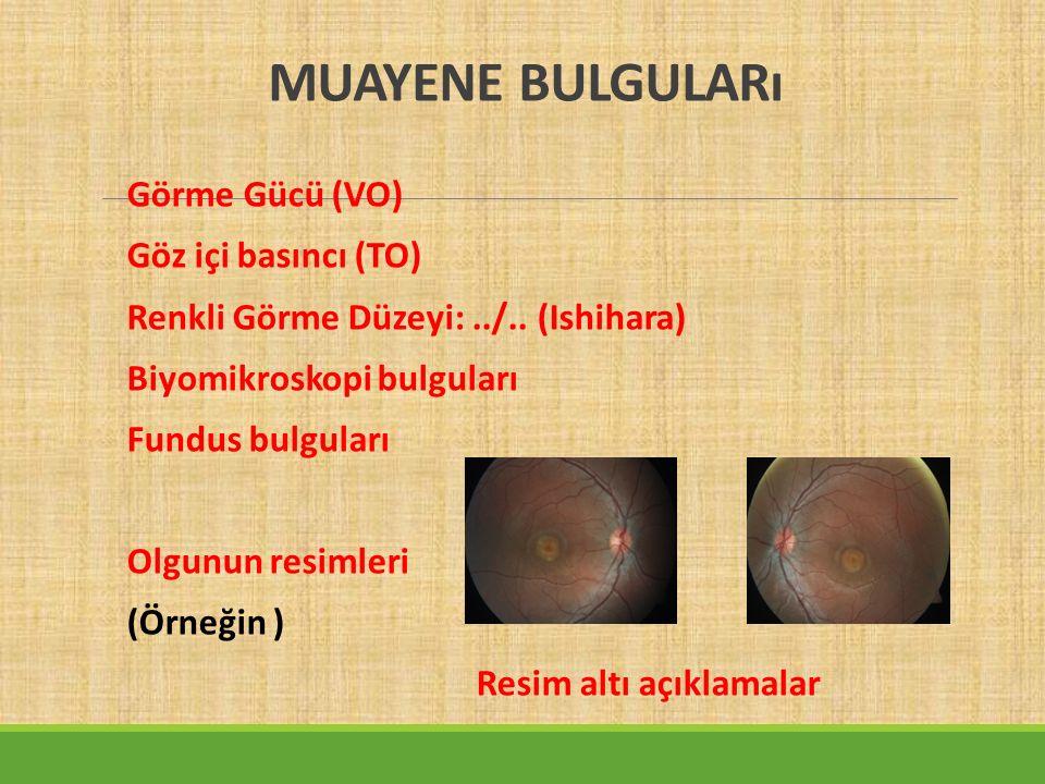 MUAYENE BULGULARı Görme Gücü (VO) Göz içi basıncı (TO) Renkli Görme Düzeyi:../..