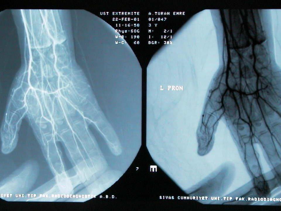 SİNDAKTİLİ TEDAVİ: Tedavisi Cerrahidir.(Z-plasti ile ayrılır) Deformite ciddiyse erken cerrahi yapılır.