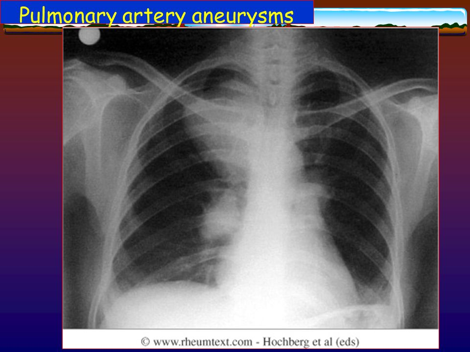 Pulmonary artery aneurysms