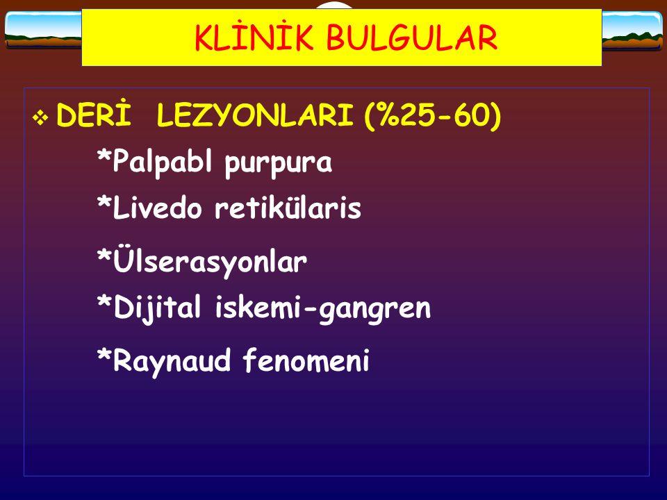 KLİNİK BULGULAR  DERİ LEZYONLARI(%25-60) *Palpabl purpura *Livedo retikülaris *Ülserasyonlar *Dijital iskemi-gangren *Raynaud fenomeni