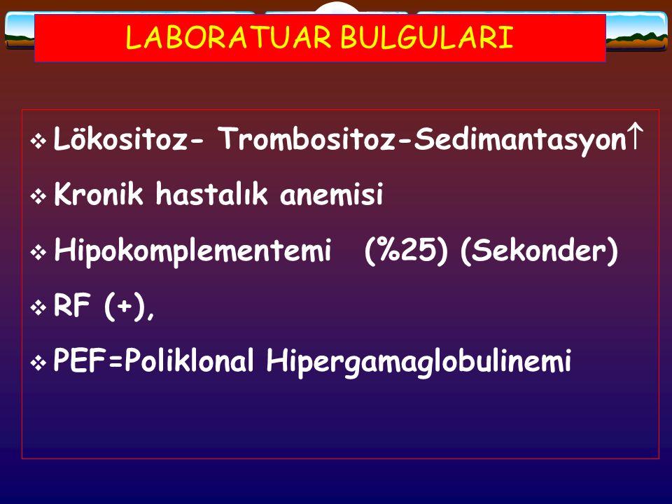 LABORATUAR BULGULARI  Lökositoz- Trombositoz-Sedimantasyon   Kronik hastalık anemisi  Hipokomplementemi(%25) (Sekonder)  RF (+),  PEF=Poliklonal