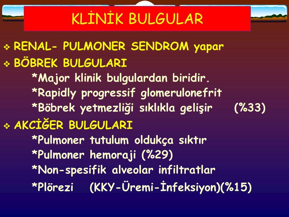 KLİNİK BULGULAR  RENAL- PULMONER SENDROM yapar  BÖBREK BULGULARI *Major klinik bulgulardan biridir. *Rapidly progressif glomerulonefrit *Böbrek yetm