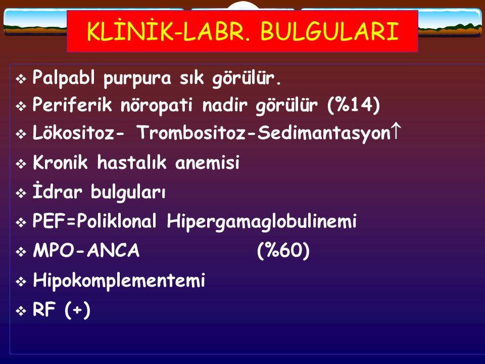KLİNİK-LABR. BULGULARI  Palpabl purpura sık görülür.  Periferik nöropati nadir görülür (%14)  Lökositoz- Trombositoz-Sedimantasyon   Kronik hasta