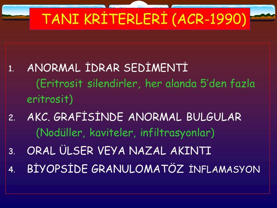 TANI KRİTERLERİ (ACR-1990) 1. ANORMAL İDRAR SEDİMENTİ (Eritrosit silendirler, her alanda 5'den fazla eritrosit) 2. AKC. GRAFİSİNDE ANORMAL BULGULAR (N