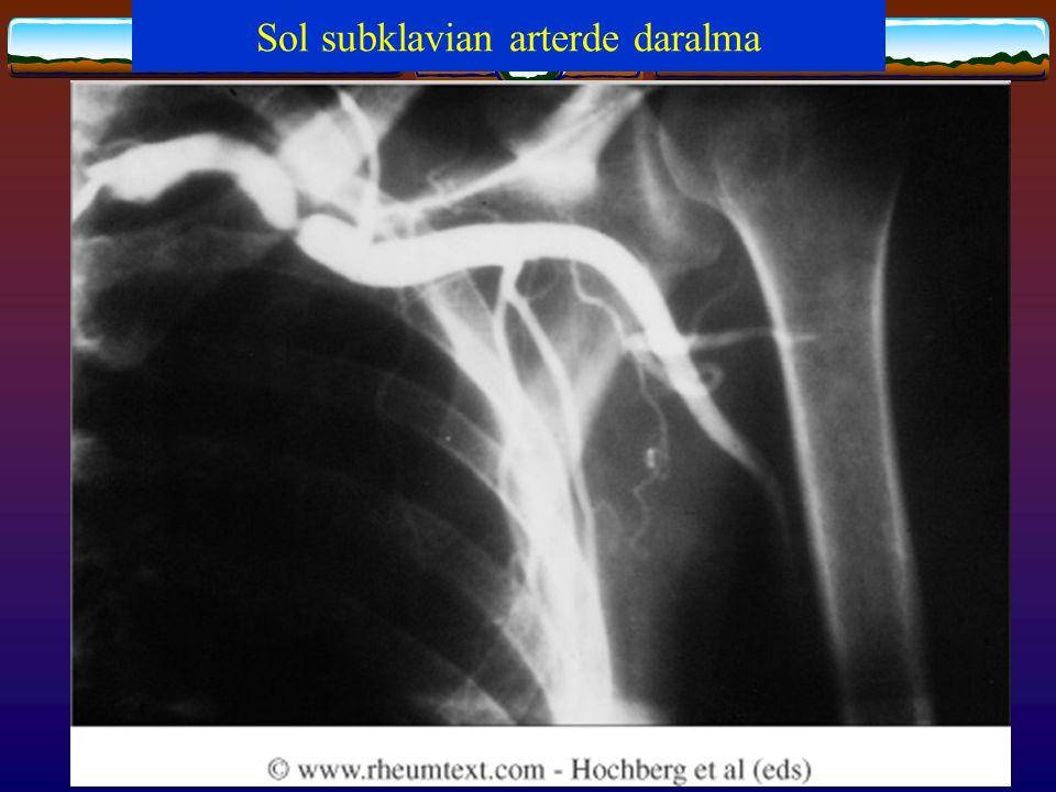 Sol subklavian arterde daralma