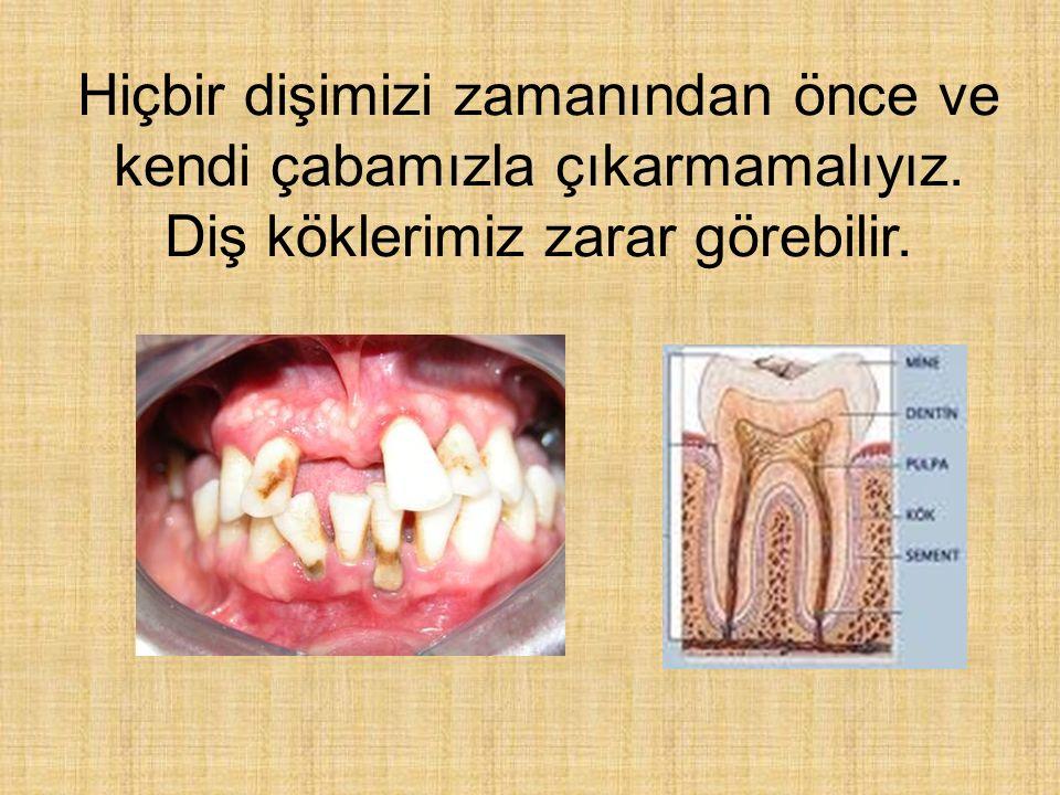 Hiçbir dişimizi zamanından önce ve kendi çabamızla çıkarmamalıyız. Diş köklerimiz zarar görebilir.