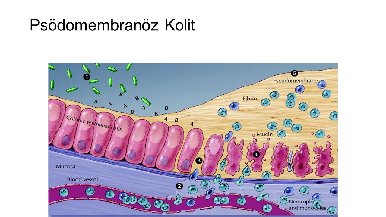 Psödomembranöz Kolit (Patogenez)