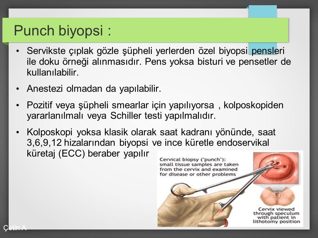 Punch biyopsi : Servikste çıplak gözle şüpheli yerlerden özel biyopsi pensleri ile doku örneği alınmasıdır. Pens yoksa bisturi ve pensetler de kullanı