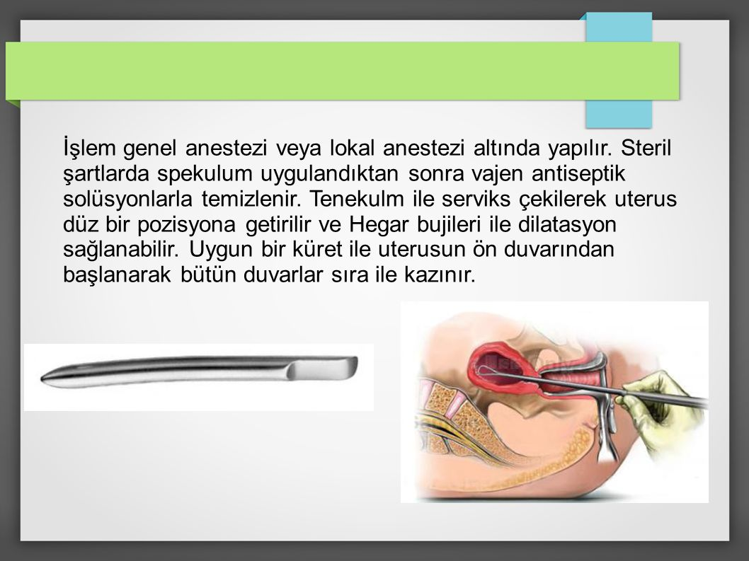 İşlem genel anestezi veya lokal anestezi altında yapılır. Steril şartlarda spekulum uygulandıktan sonra vajen antiseptik solüsyonlarla temizlenir. Ten