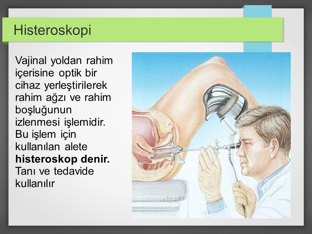 Aralık 2003 Histeroskopi Vajinal yoldan rahim içerisine optik bir cihaz yerleştirilerek rahim ağzı ve rahim boşluğunun izlenmesi işlemidir. Bu işlem i