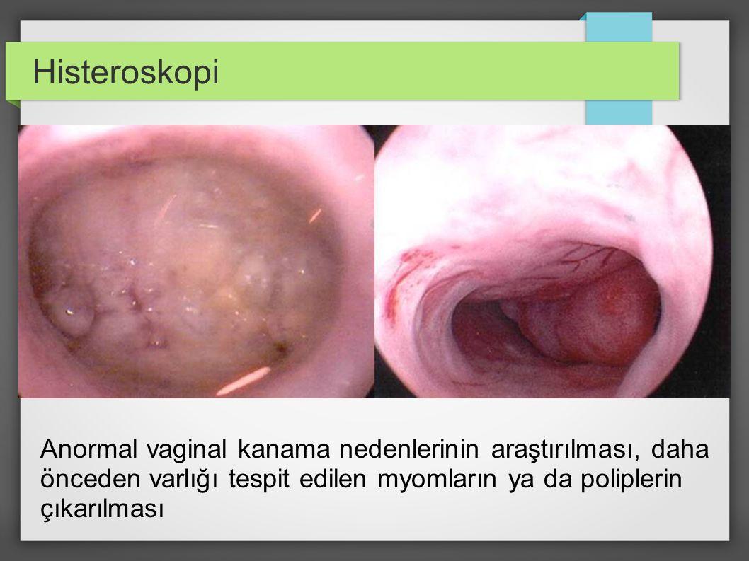 Anormal vaginal kanama nedenlerinin araştırılması, daha önceden varlığı tespit edilen myomların ya da poliplerin çıkarılması Histeroskopi
