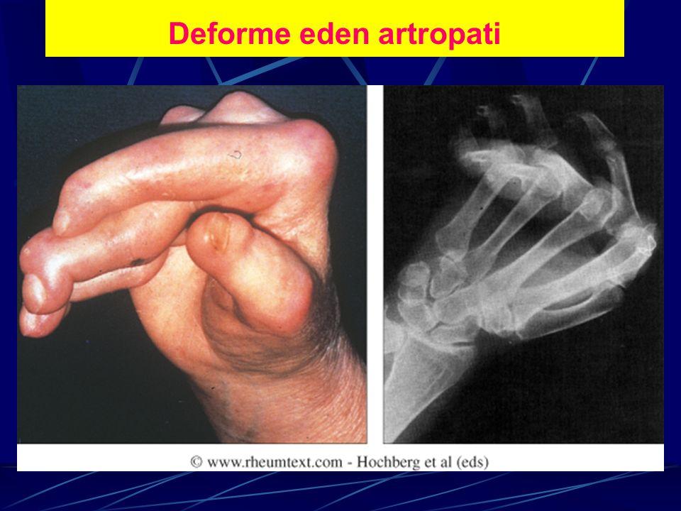 Deforme eden artropati