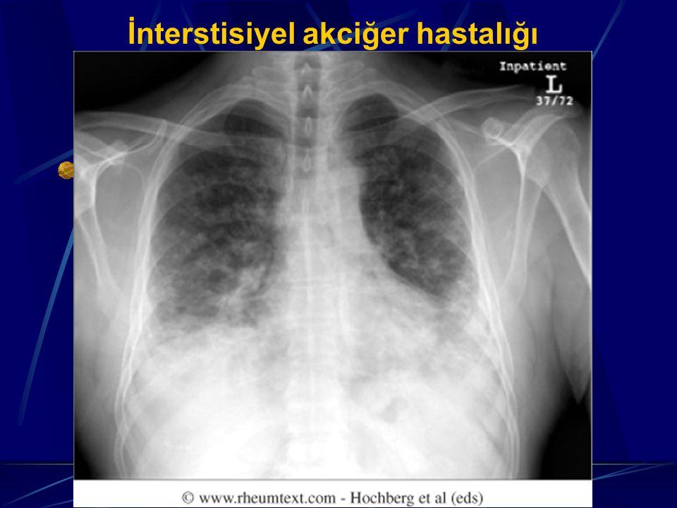 İnterstisiyel akciğer hastalığı