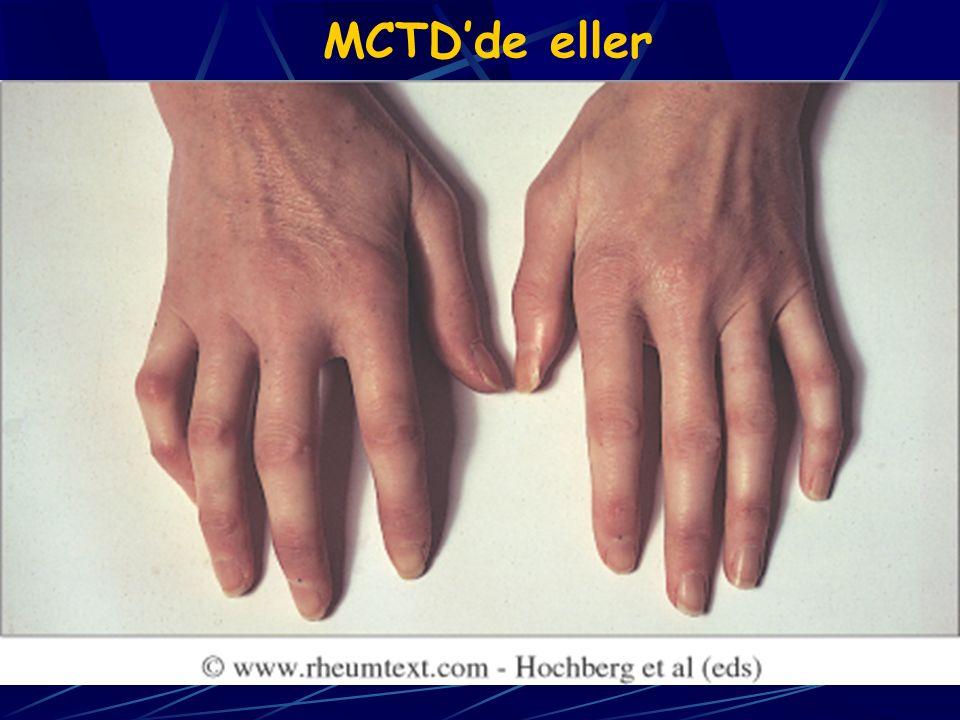 MCTD'de eller