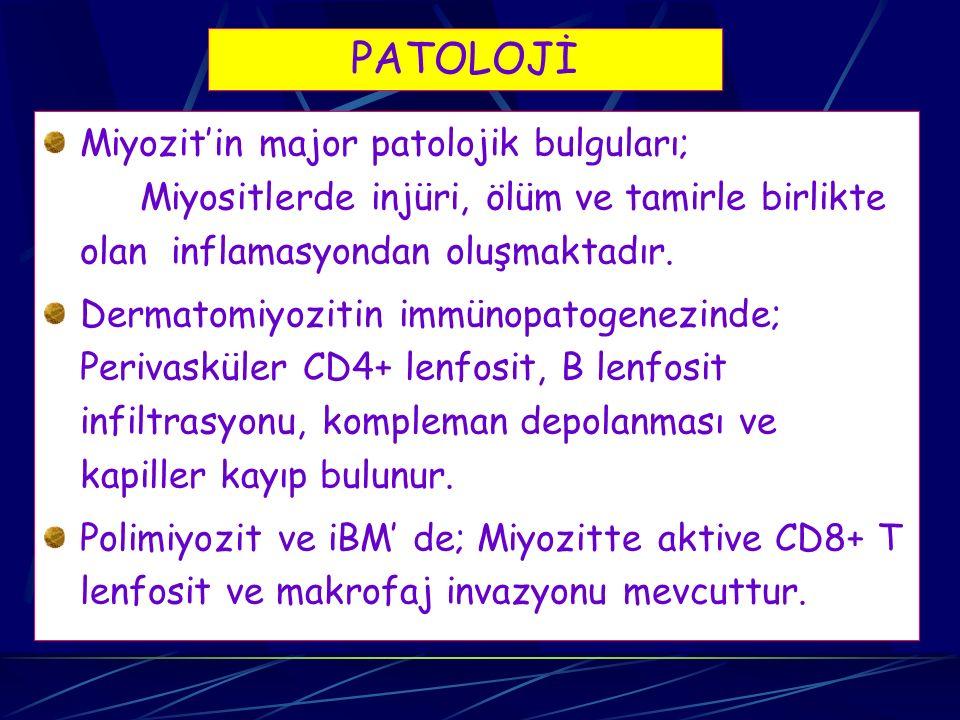 PATOLOJİ Miyozit'in major patolojik bulguları; Miyositlerde injüri, ölüm ve tamirle birlikte olan inflamasyondan oluşmaktadır. Dermatomiyozitin immüno