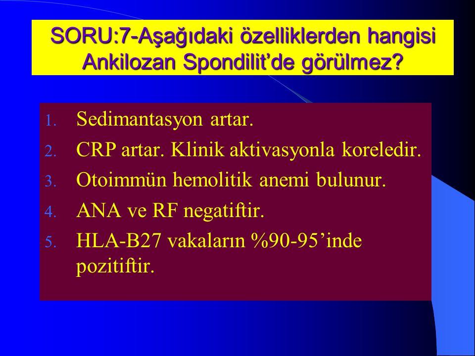 SORU:7-Aşağıdaki özelliklerden hangisi Ankilozan Spondilit'de görülmez.