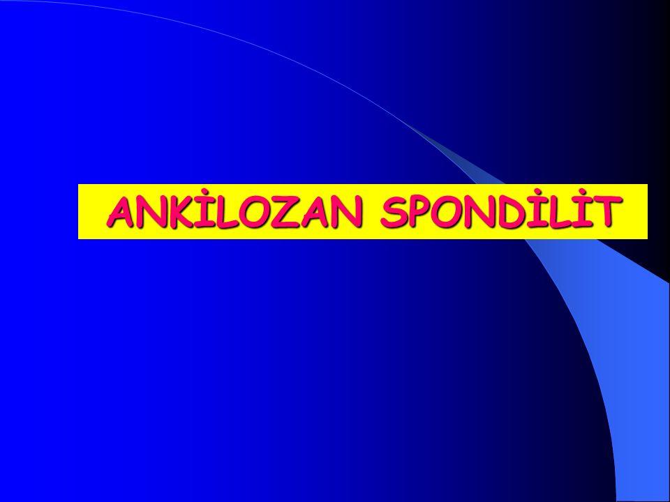 ANKİLOZAN SPONDİLİT