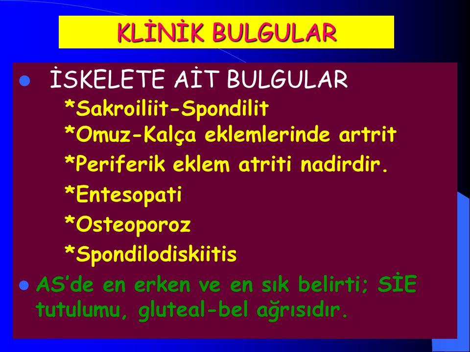 KLİNİK BULGULAR İSKELETE AİT BULGULAR *Sakroiliit-Spondilit *Omuz-Kalça eklemlerinde artrit *Periferik eklem atriti nadirdir.