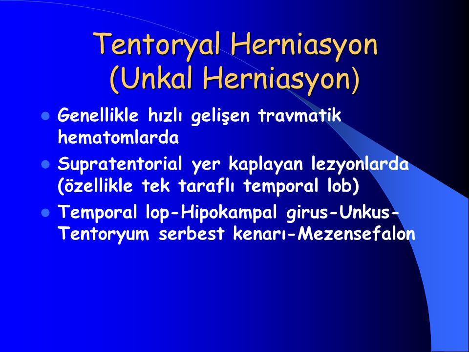 Tentoryal Herniasyon (Unkal Herniasyon ) Genellikle hızlı gelişen travmatik hematomlarda Supratentorial yer kaplayan lezyonlarda (özellikle tek tarafl