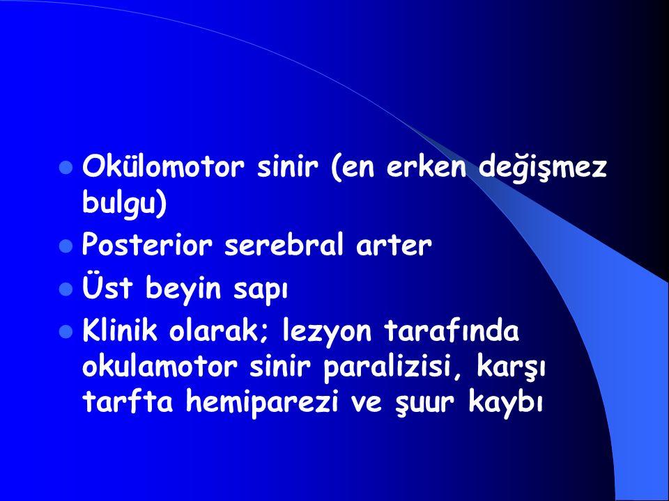 Okülomotor sinir (en erken değişmez bulgu) Posterior serebral arter Üst beyin sapı Klinik olarak; lezyon tarafında okulamotor sinir paralizisi, karşı