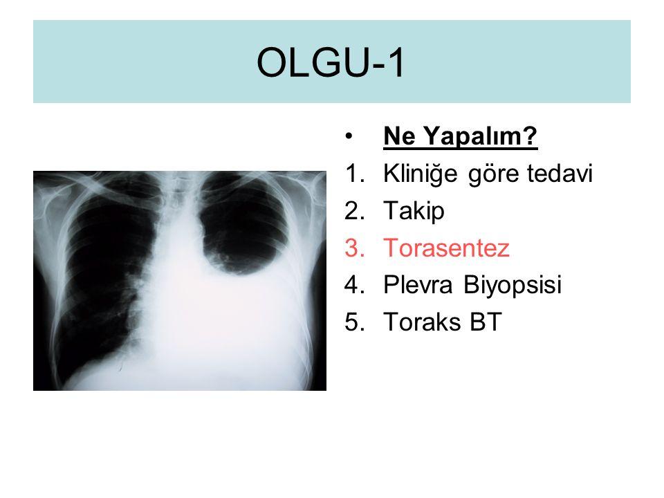 OLGU-1 Ne Yapalım? 1.Kliniğe göre tedavi 2.Takip 3.Torasentez 4.Plevra Biyopsisi 5.Toraks BT
