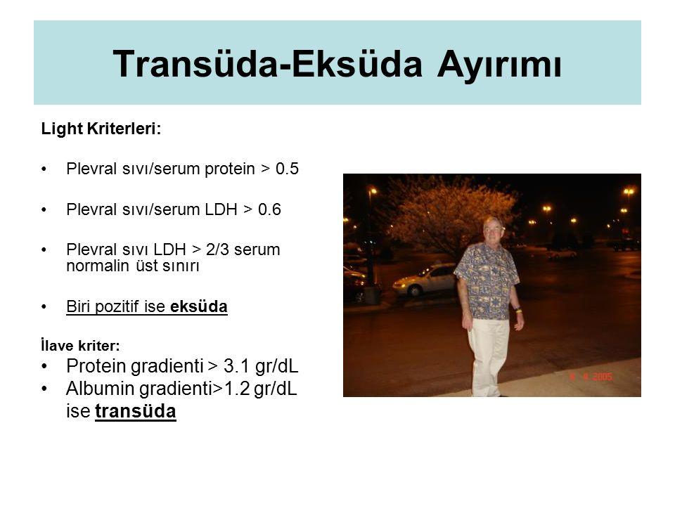 Transüda-Eksüda Ayırımı Light Kriterleri: Plevral sıvı/serum protein > 0.5 Plevral sıvı/serum LDH > 0.6 Plevral sıvı LDH > 2/3 serum normalin üst sını