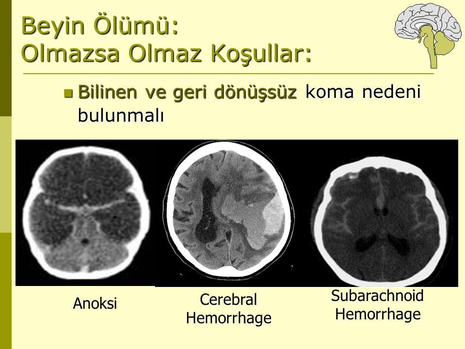 Beyin Ölümü: Olmazsa Olmaz Koşullar: Bilinen ve geri dönüşsüz koma nedeni bulunmalı Bilinen ve geri dönüşsüz koma nedeni bulunmalı Anoksi Cerebral Hem