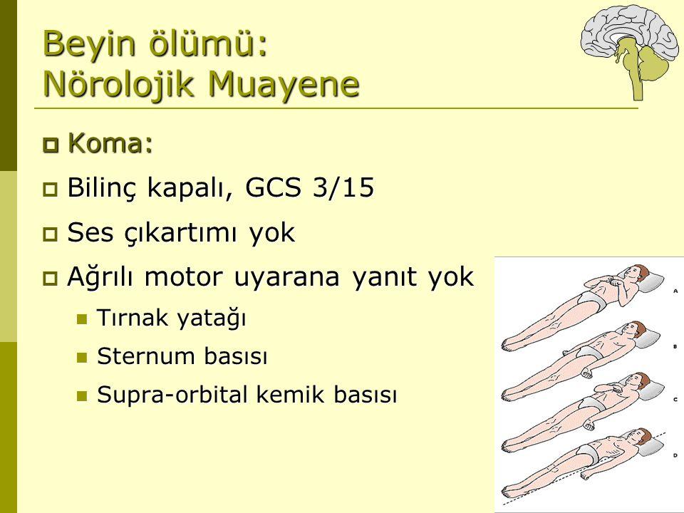 Beyin ölümü: Nörolojik Muayene  Koma:  Bilinç kapalı, GCS 3/15  Ses çıkartımı yok  Ağrılı motor uyarana yanıt yok Tırnak yatağı Tırnak yatağı Ster