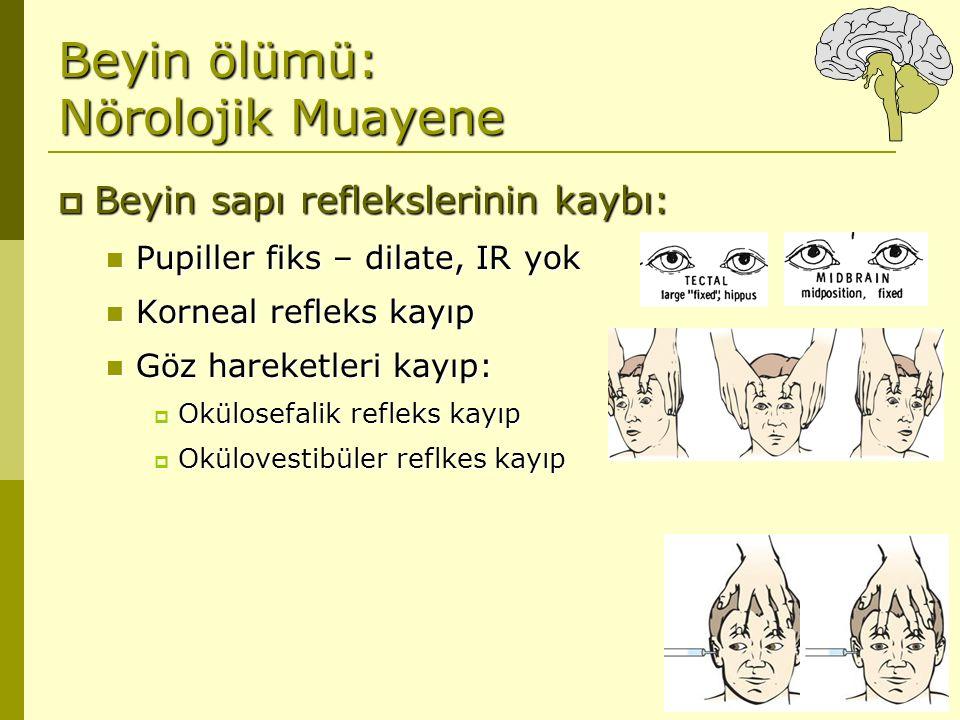 Beyin ölümü: Nörolojik Muayene  Beyin sapı reflekslerinin kaybı: Pupiller fiks – dilate, IR yok Pupiller fiks – dilate, IR yok Korneal refleks kayıp