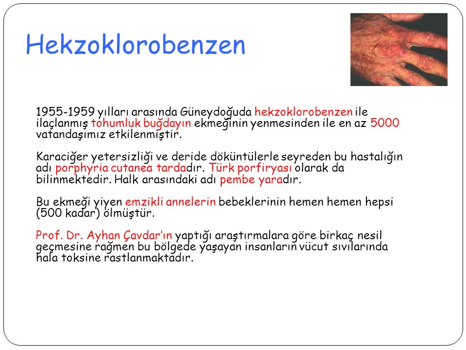 Hekzoklorobenzen 1955-1959 yılları arasında Güneydoğuda hekzoklorobenzen ile ilaçlanmış tohumluk buğdayın ekmeğinin yenmesinden ile en az 5000 vatanda