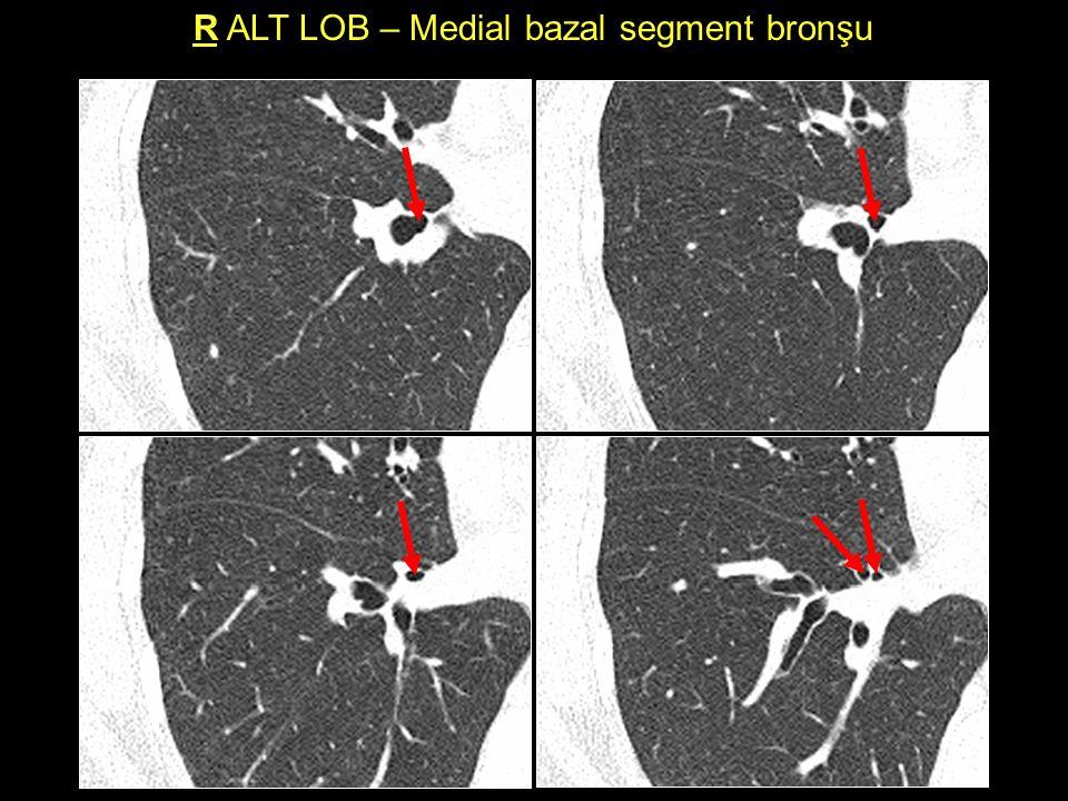 R ALT LOB – Medial bazal segment bronşu