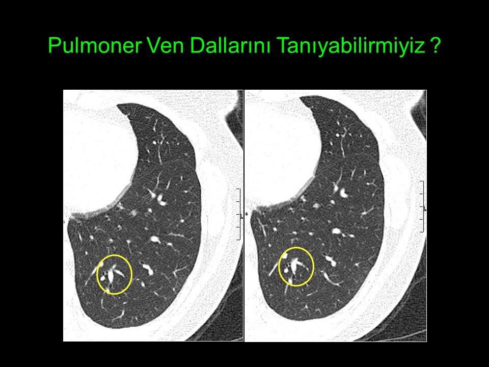Pulmoner Ven Dallarını Tanıyabilirmiyiz ?