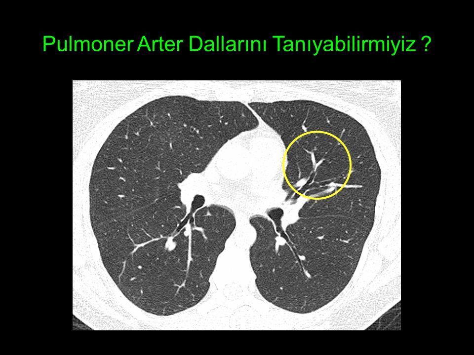 Pulmoner Arter Dallarını Tanıyabilirmiyiz ?