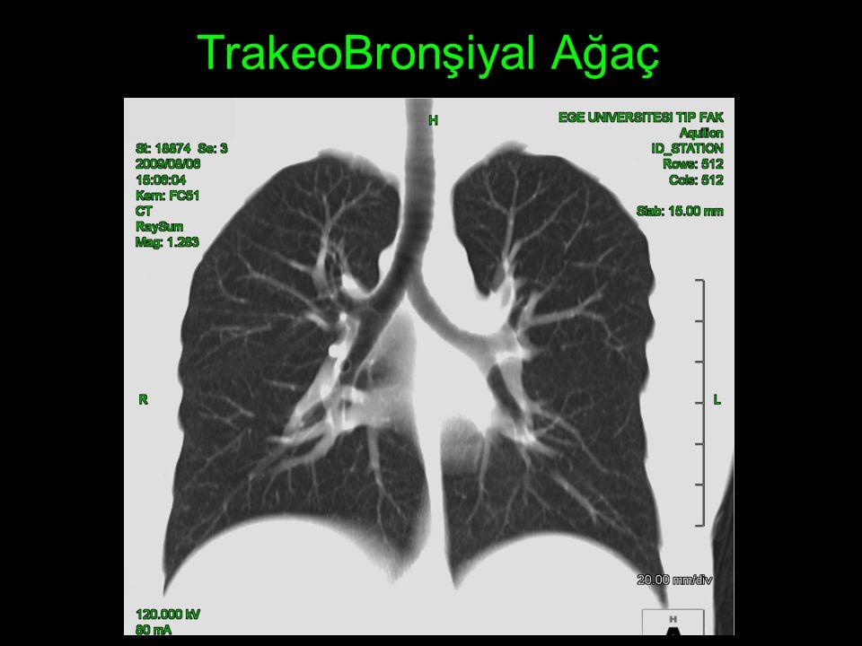 Tiroid Bezi Özefagus İnternal juguler ven Karotid arter Boyun adele yapıları