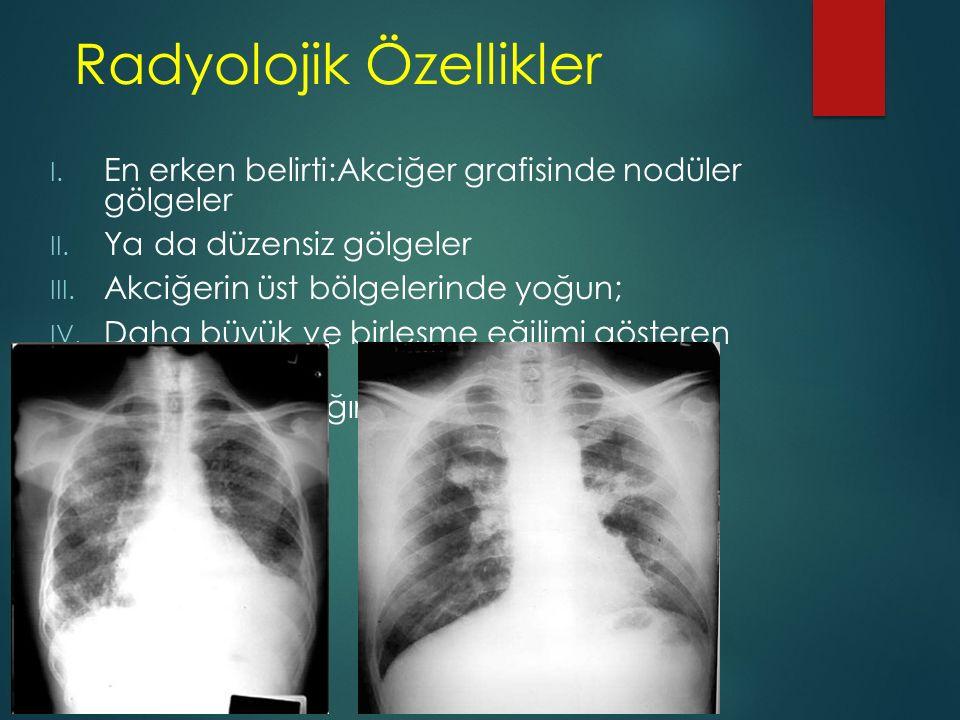 Radyolojik Özellikler I. En erken belirti:Akciğer grafisinde nodüler gölgeler II. Ya da düzensiz gölgeler III. Akciğerin üst bölgelerinde yoğun; IV. D